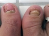 In total I lost 4 toenails during my training, including both my big toenails
